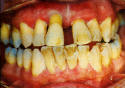 Visual display of the progression of periodonal, or 'gum' disease.