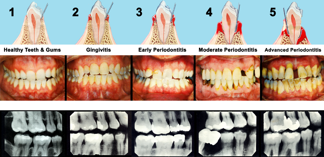Stages of periodontal disease or gum disease