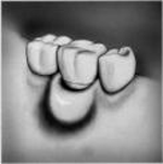 periodontal pocket - a symptom of gum disease
